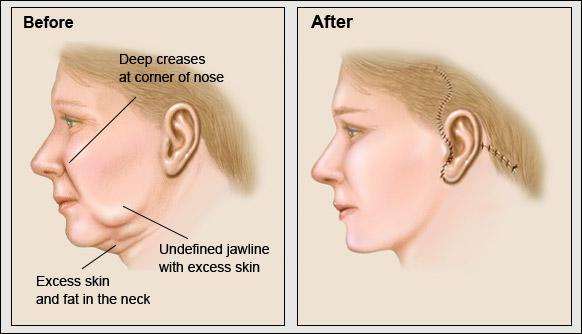 best procedures facial surgery