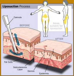 liposuction_process_lg