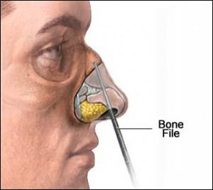 nose_bone_file_lg