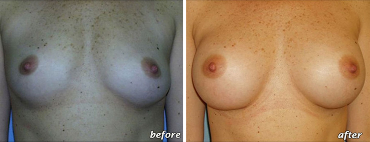 breast-augmentation-before-and-after-2