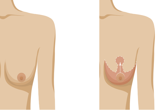 Breast lift infographic